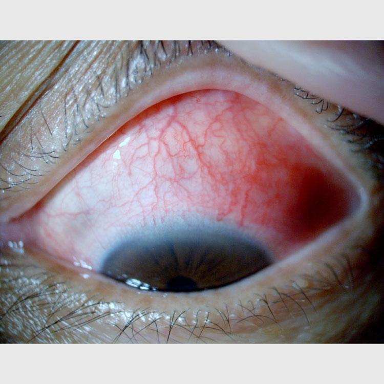 眼表面の疾患