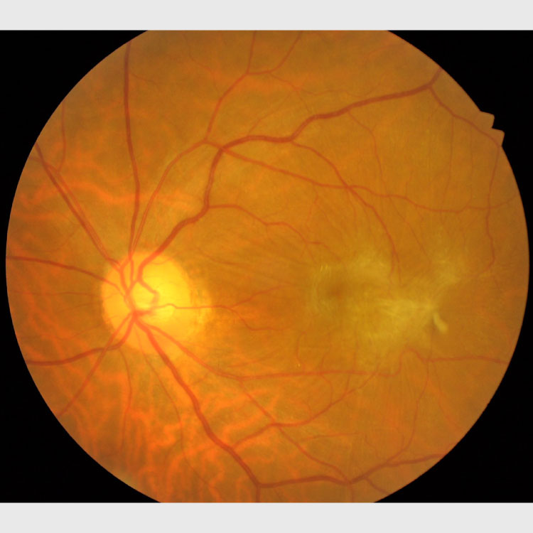 網膜硝子体疾患