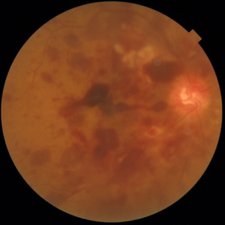視神経疾患